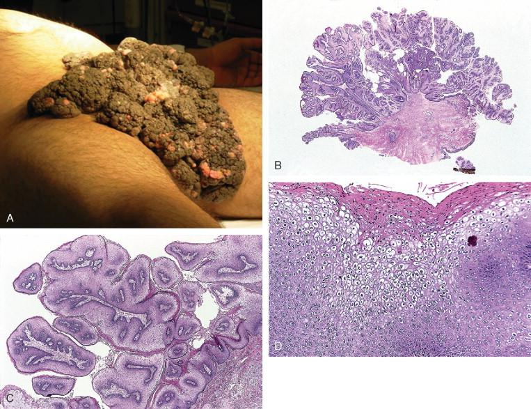 nasal papilloma causes hpv negatif et condylome