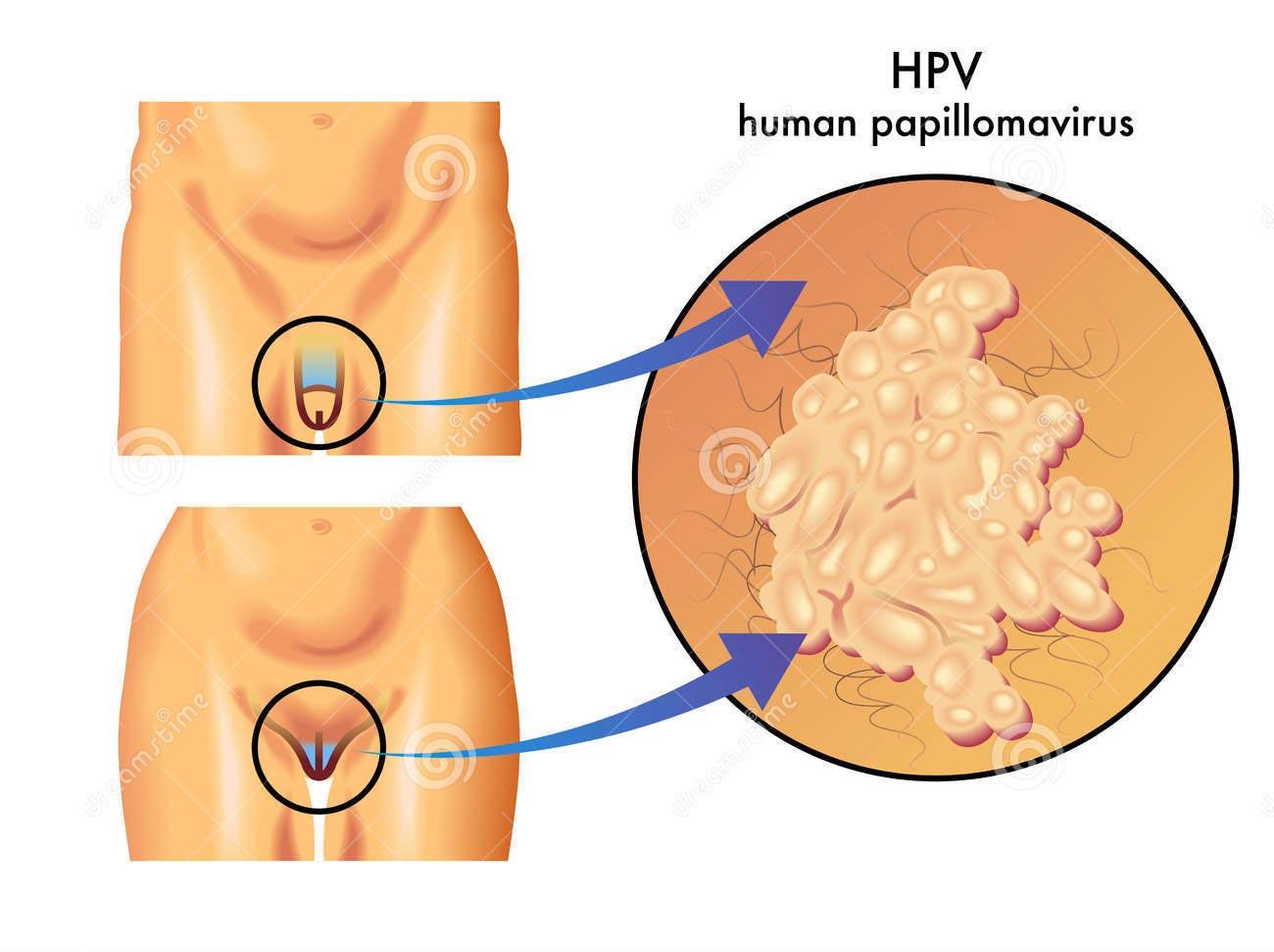conseguenze del papilloma virus nelluomo)