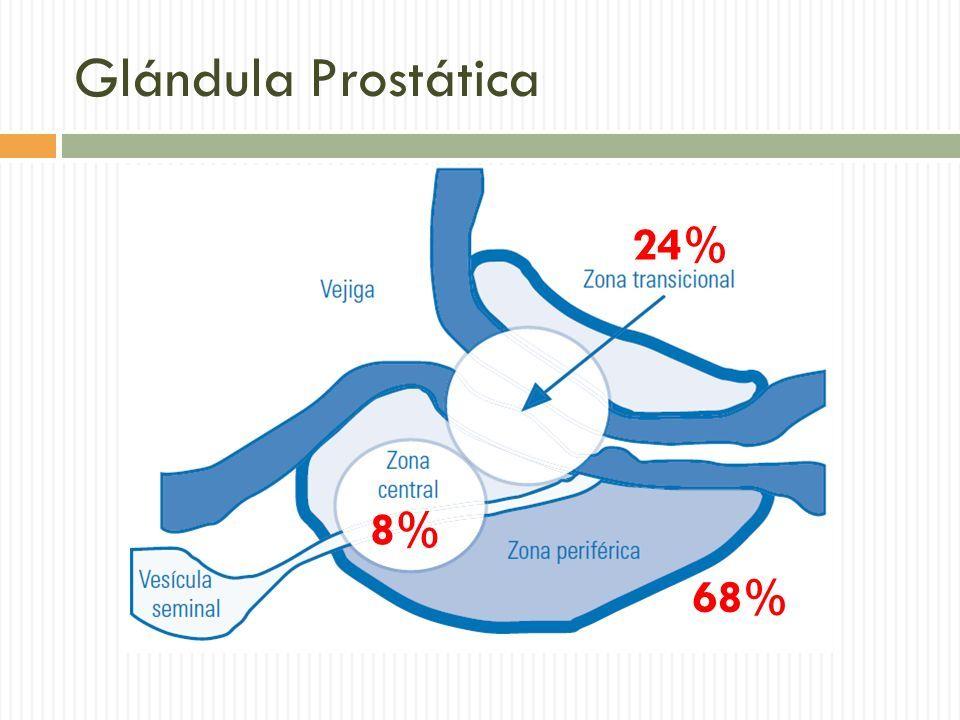 cancer prostata zona periferica