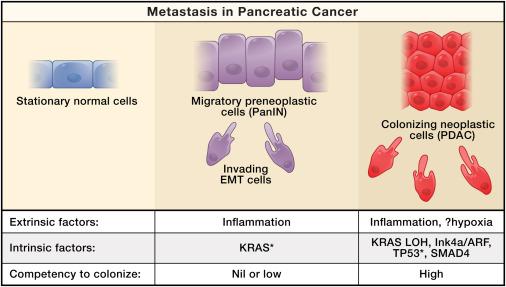 cancer pancreas metastasis