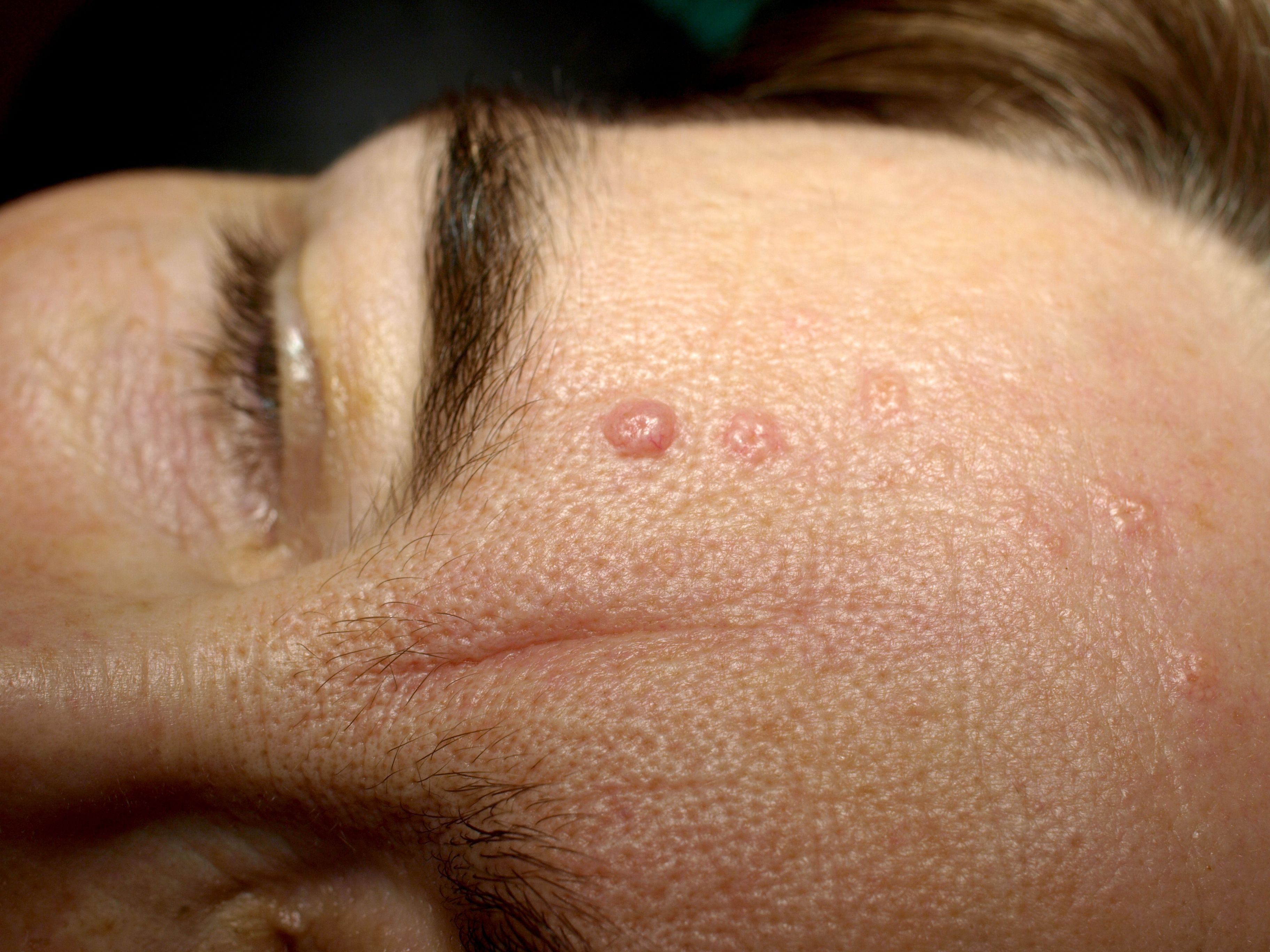 basal cell papillomas pictures