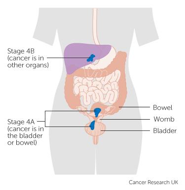 endometrial cancer is dangerous
