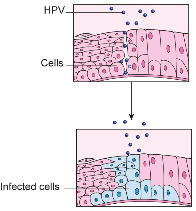 human papillomavirus cervical dysplasia)