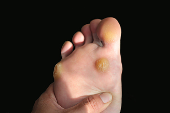 warts in foot sole)