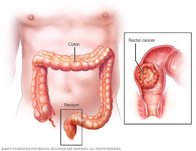cancer rectal pain