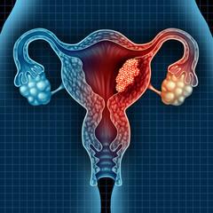 cancer endometrial stadii