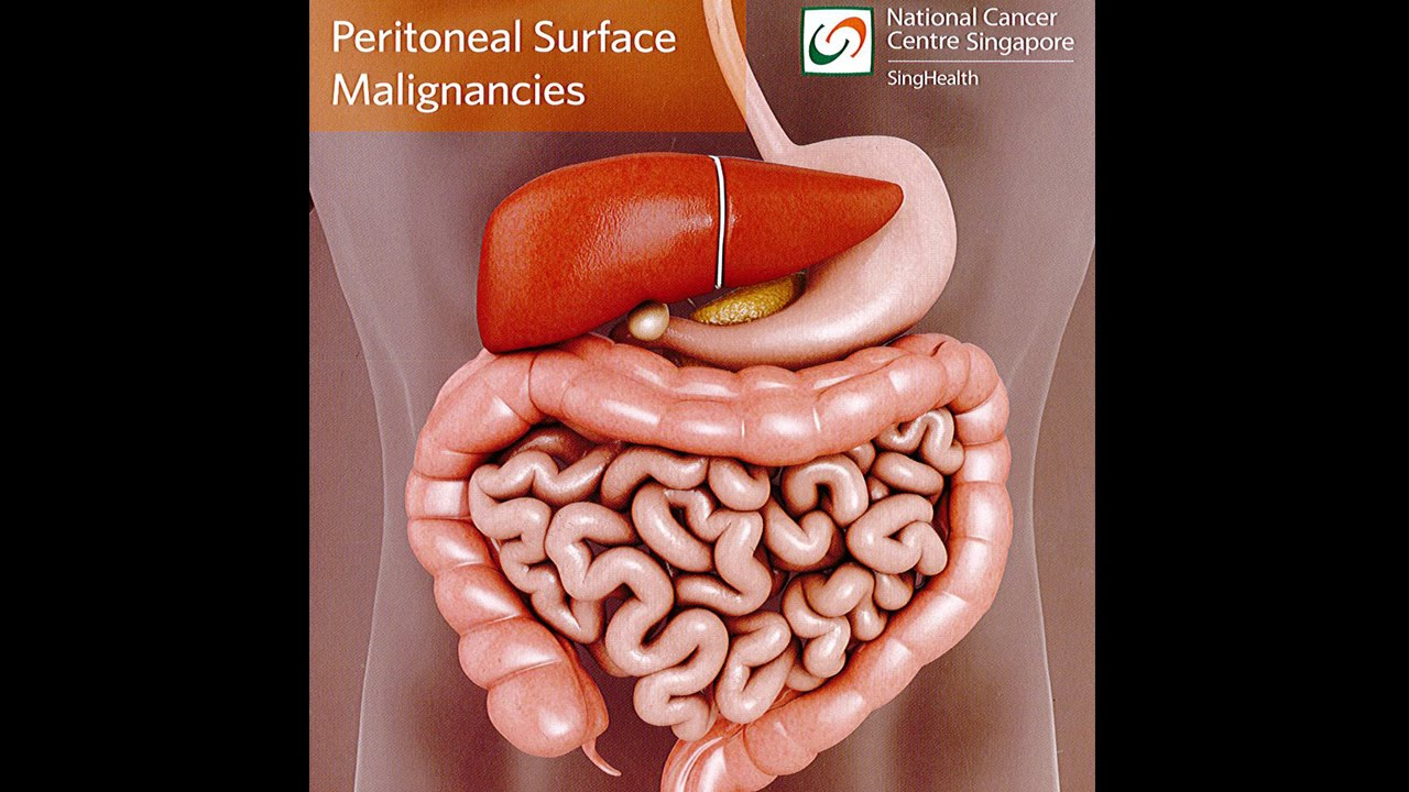 ovarian cancer with peritoneal carcinomatosis