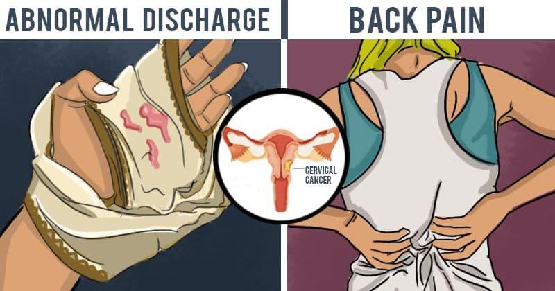 uterine cancer pain in legs)