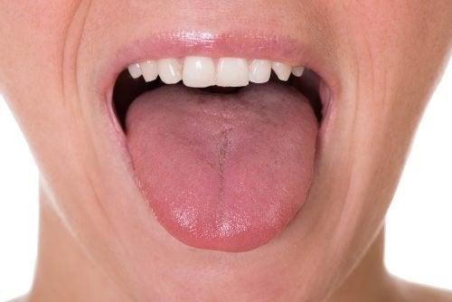 papilloma virus tumore lingua