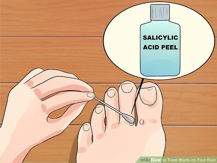 treatment for papilloma on foot