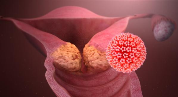 virus papiloma humano fases