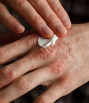 dermatite atopica cura)