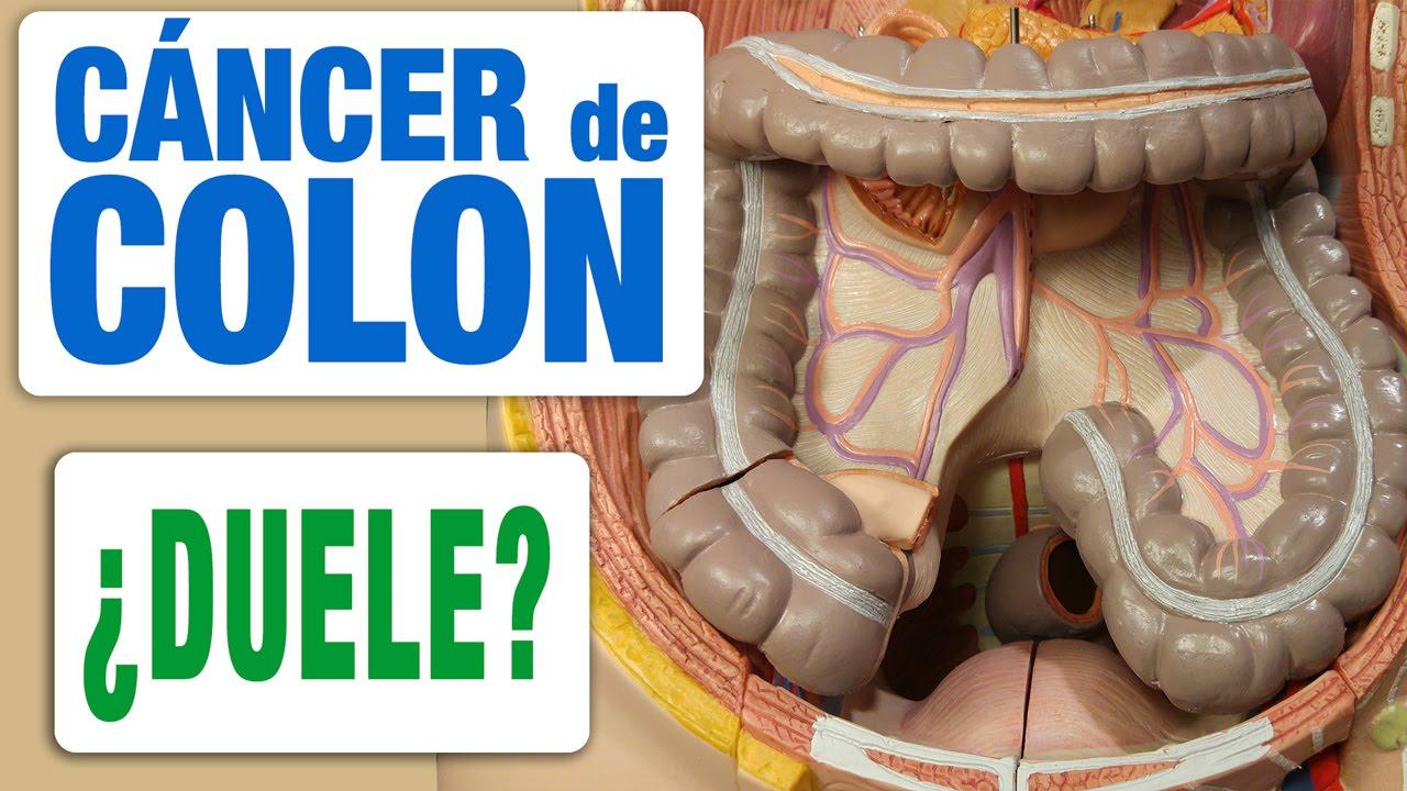 cancer de colon y dolor lumbar pt viermisori copii