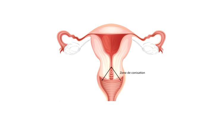 douleur uterus papillomavirus