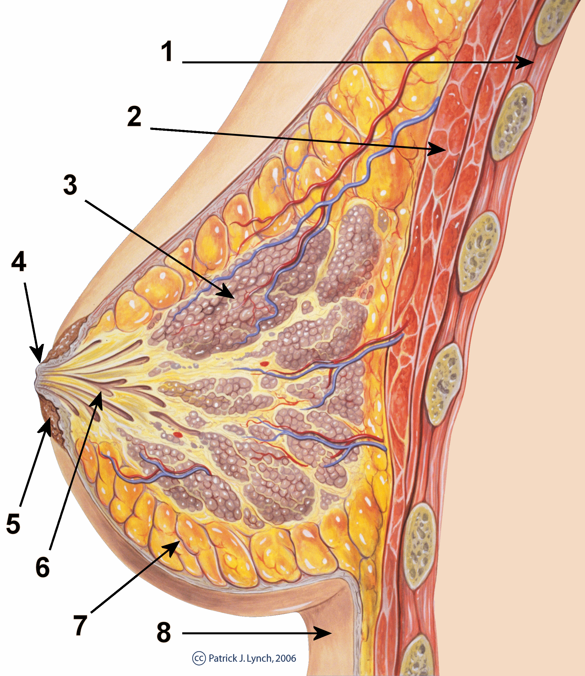 ductal papilloma while breastfeeding