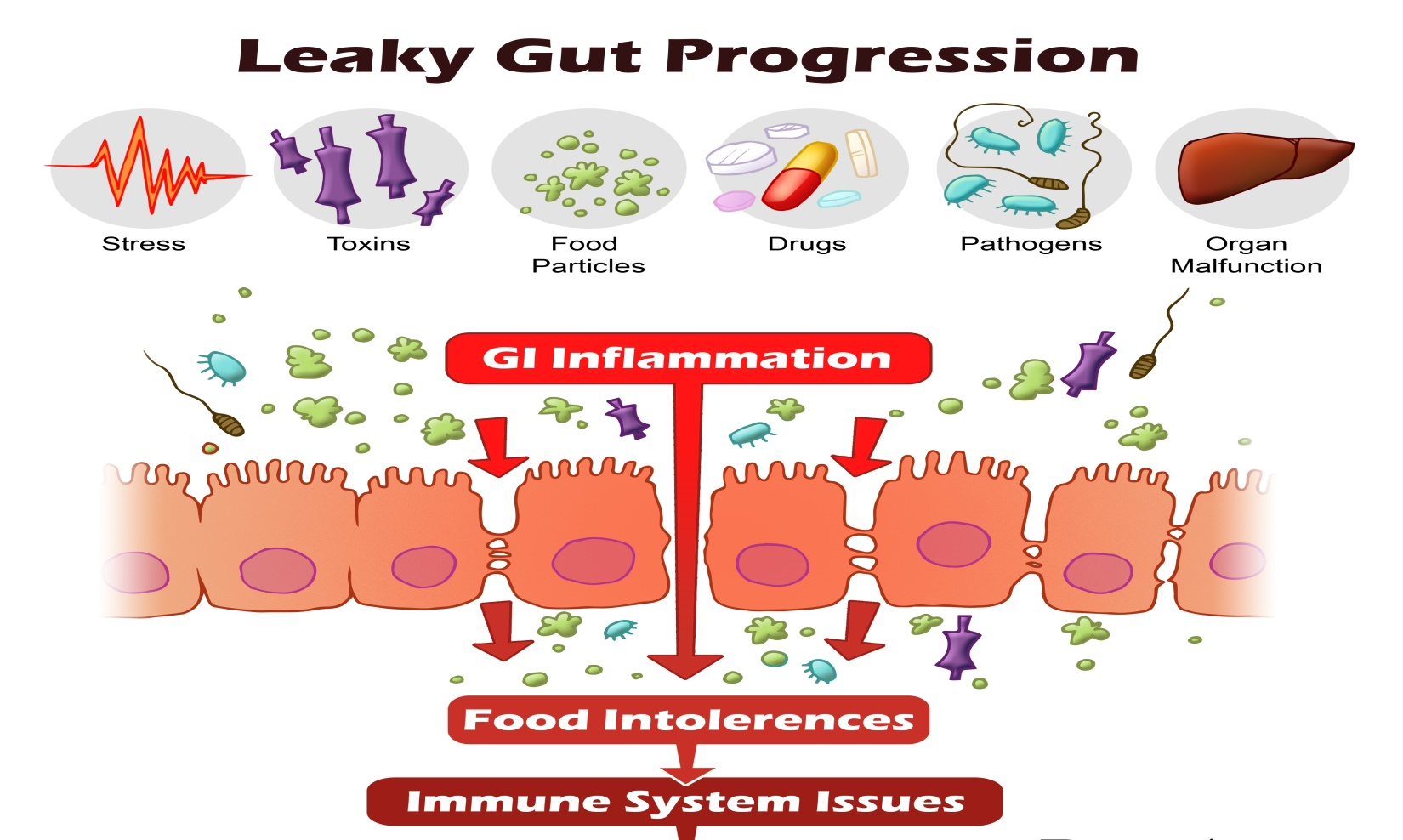 dysbiosis leaky gut