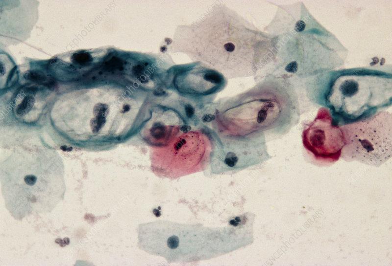 papilloma virus pap smear)