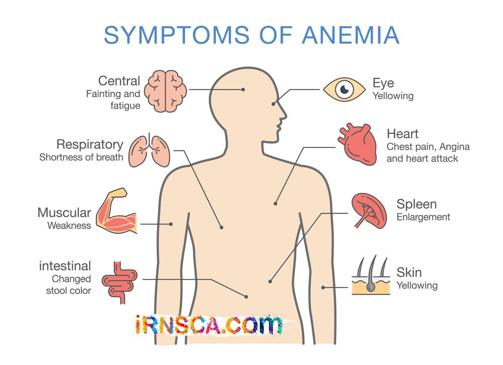 anemia weight loss