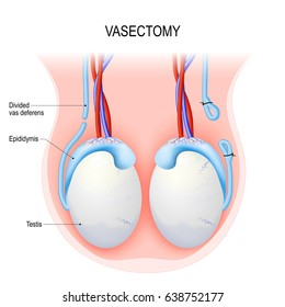 cancer testicular vasectomia)