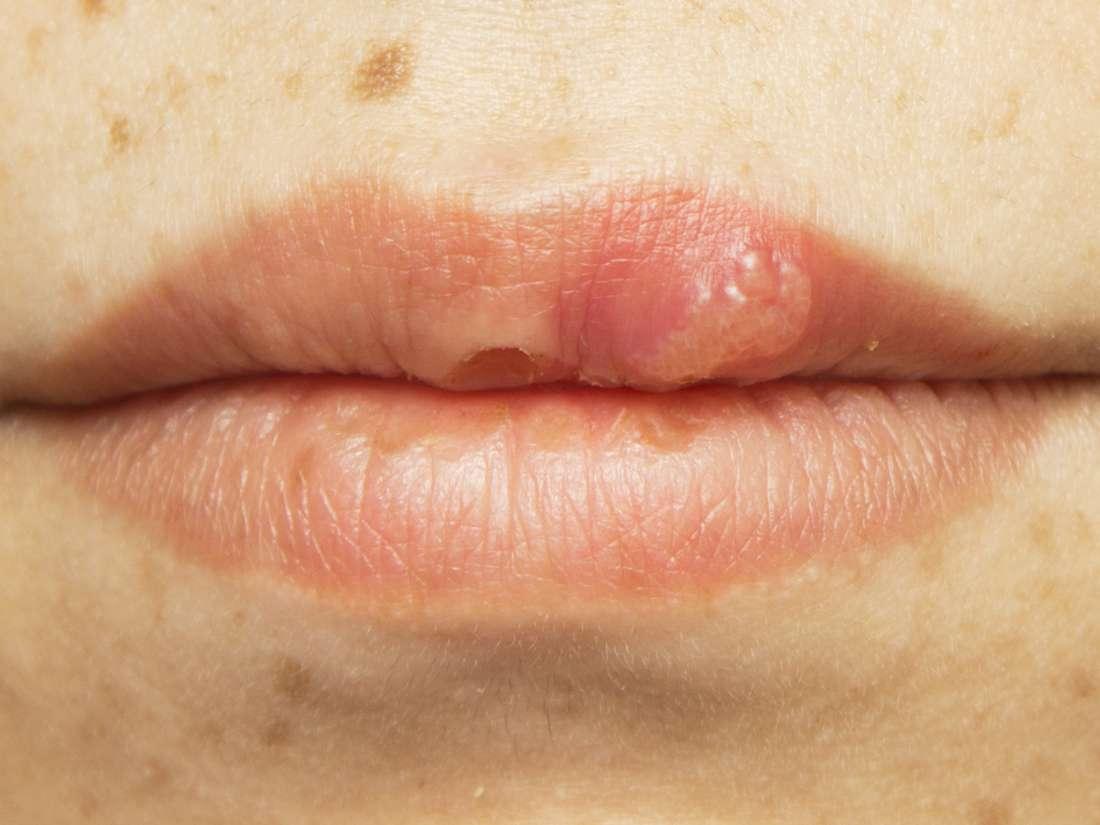 hpv lip sores)