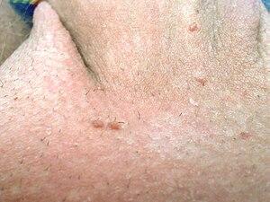 papiloma escamoso genital tratamento