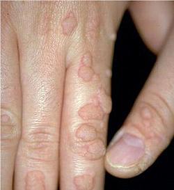 papillomavirus symptomes traitement