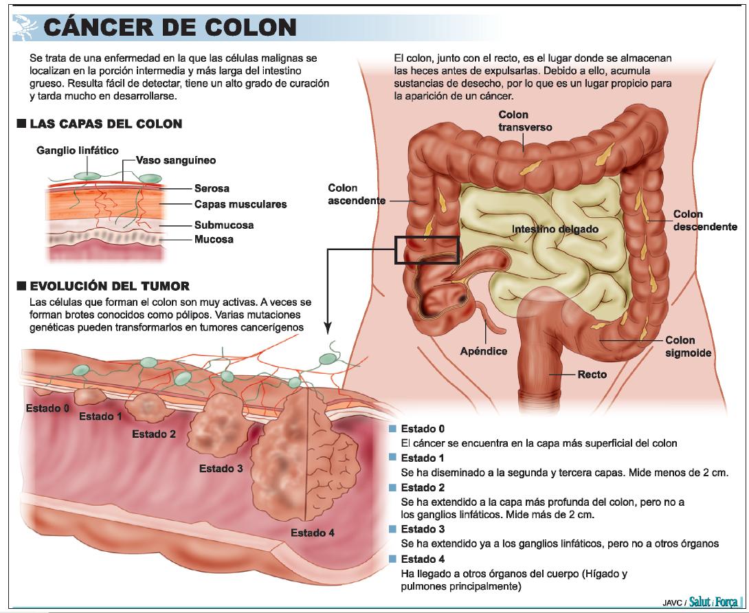 cancer de colon metastasico