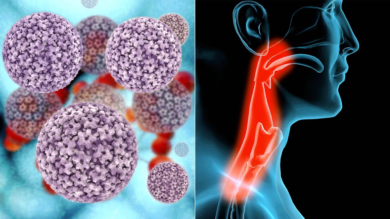 human papillomavirus (hpv) associated cancer)