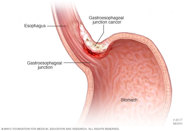 cancer in abdominal area)