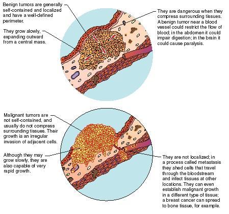 Thyroid disorders. Part III: neoplastic thyroid disease.