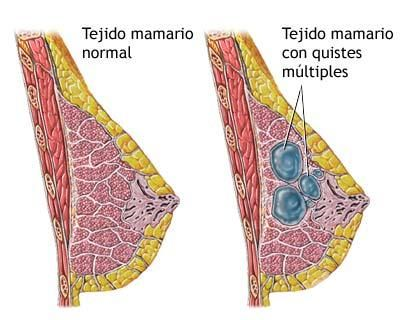 papiloma intraductal de la mama