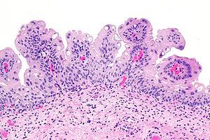 papilloma bladder