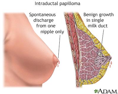 intraductal papilloma dangerous