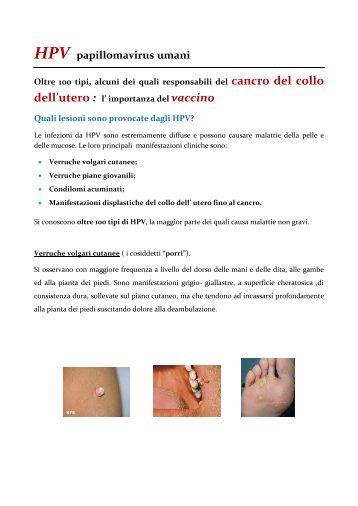 papilloma virus vaccino verruche)