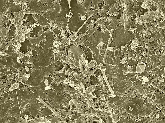 exemple de bacterii parazite)
