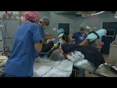 operation papillomavirus femme hpv in rectal cancer