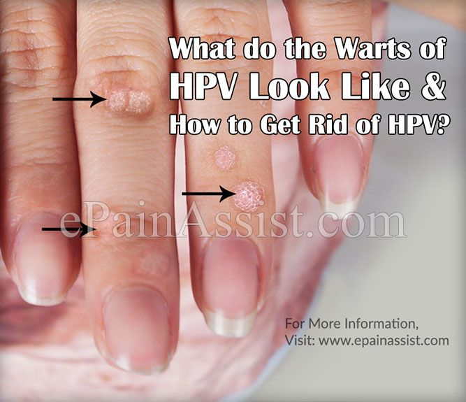 hpv warts get rid of squamous papilloma and hpv