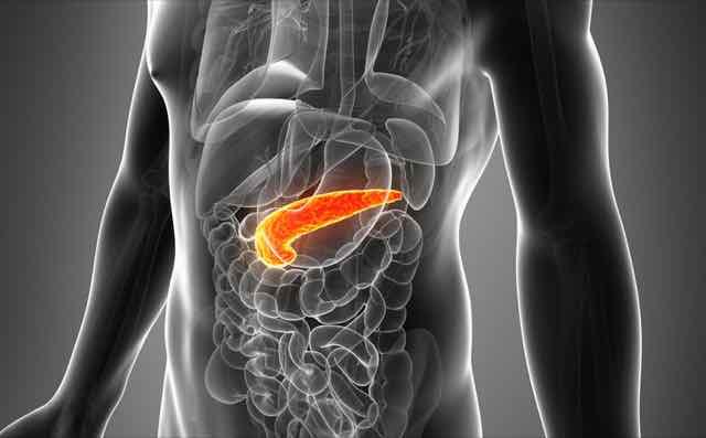 cancer de pancreas grau 3)