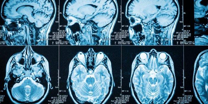 cancer lymphome cerebral)