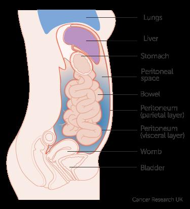 peritoneal cancer no symptoms
