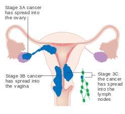 ovarian cancer or endometriosis)