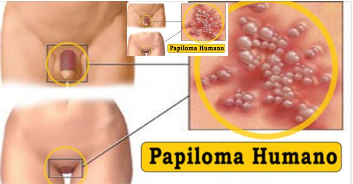 virus de papiloma humano sintomas en mujeres