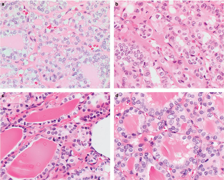 papillary thyroid carcinoma follicular variant histology)
