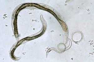 bicarbonat pentru paraziti intestinali