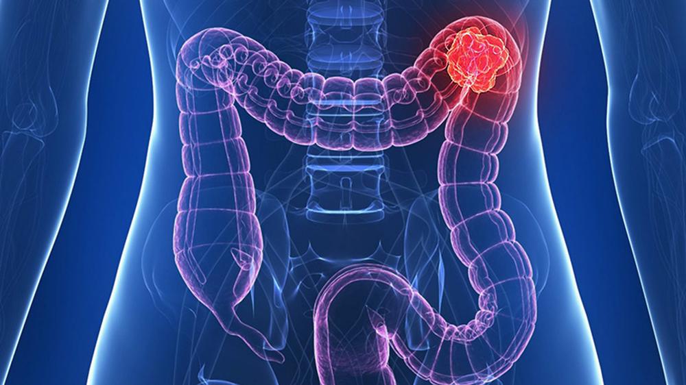 cancerul de colon drept are urmatoarele caracteristici clinice)