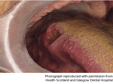 hpv squamous cell carcinoma base of tongue
