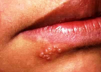 herpes y virus papiloma)