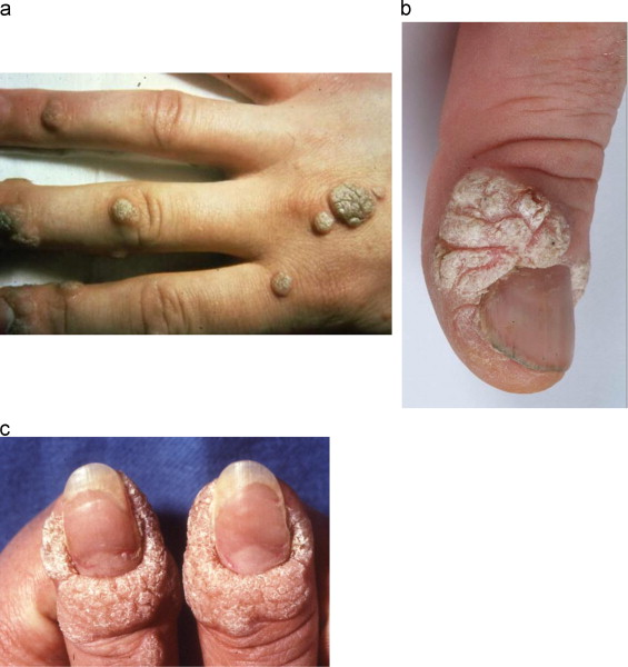 hpv warts on hands)