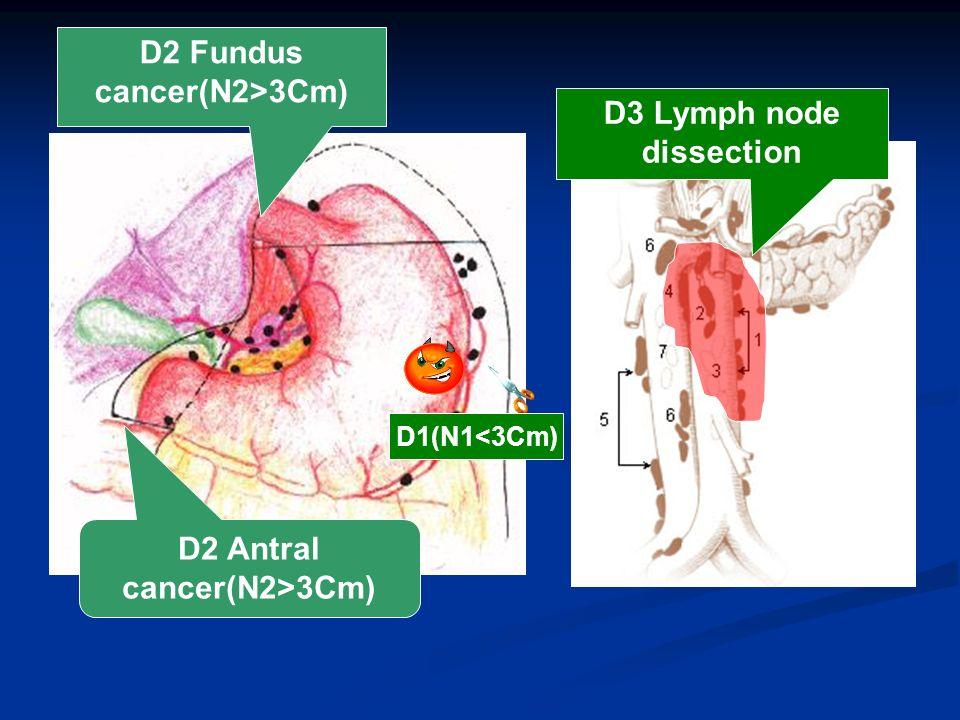gastric cancer d1 d2 d3
