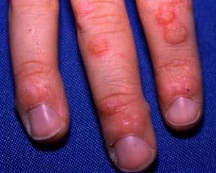hpv virus foot warts